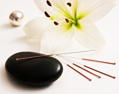 バレエのための鍼灸治療、バレエ鍼灸