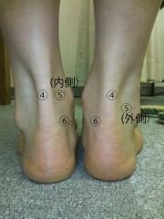 バレエの足首の痛み、治療、バレエ治療院あんじゅ