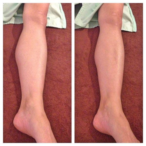 バレエの膝の痛み、治療、バレエ治療院あんじゅ