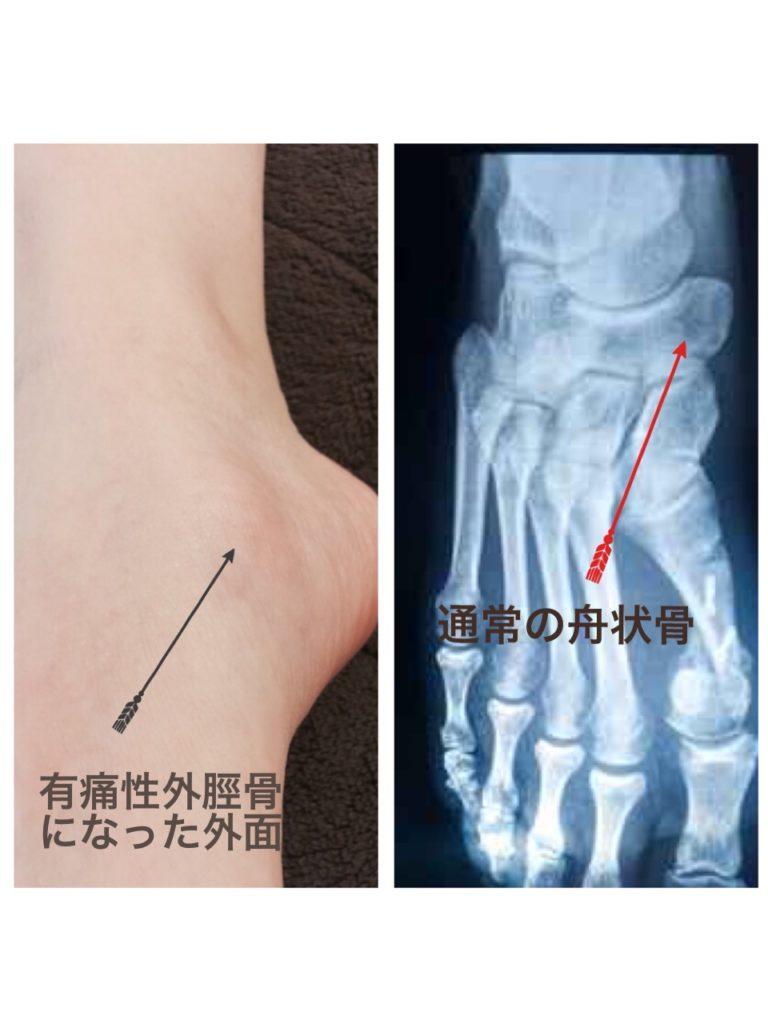 有痛性外脛骨によるバレエ障害、バレエ治療院あんじゅ