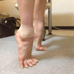 バレエの足首の治療、バレエ治療院あんじゅ