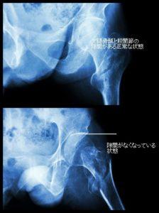 股関節症、股関節痛、バレエ治療院あんじゅ