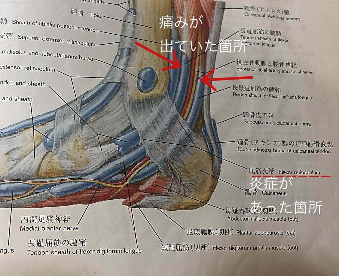 アキレス腱痛、アキレス腱周囲炎、バレエ治療院あんじゅ