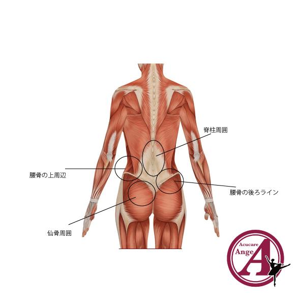ダンサーの腰痛、筋筋膜性腰痛、ペインポイント、バレエ治療院あんじゅ