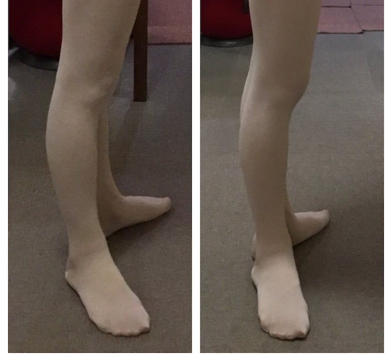 バレエ・ダンスで大切な姿勢を見直そう、バレエ治療院あんじゅ