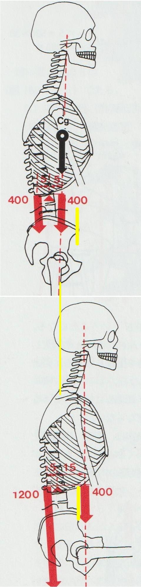 頭の位置で腰椎にかかる負担が増える バレエ治療院あんじゅ