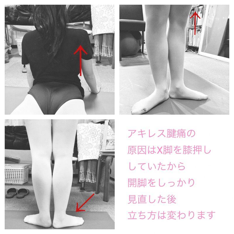 バレエ、チアダンスのカラダづくり、開脚改善、バレエ治療院あんじゅ